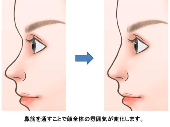 鼻を高くする整形手術