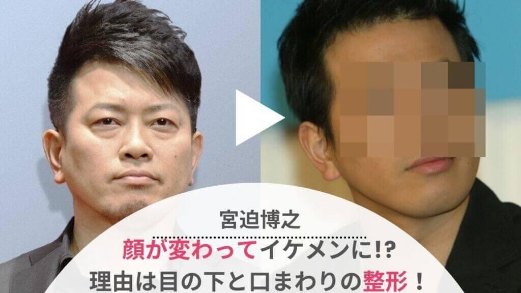 【画像】宮迫博之が整形で顔変わった!?クマやほうれい線を昔と比較